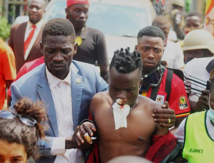 Bobi Wine with his friend Sir Dan Magic who was injured by police